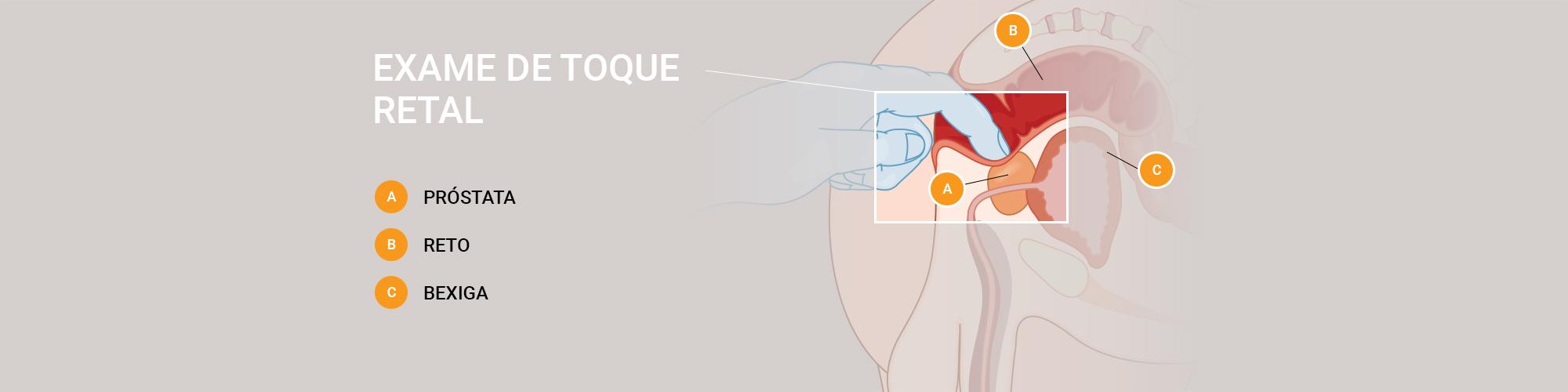 Exame de toque retal